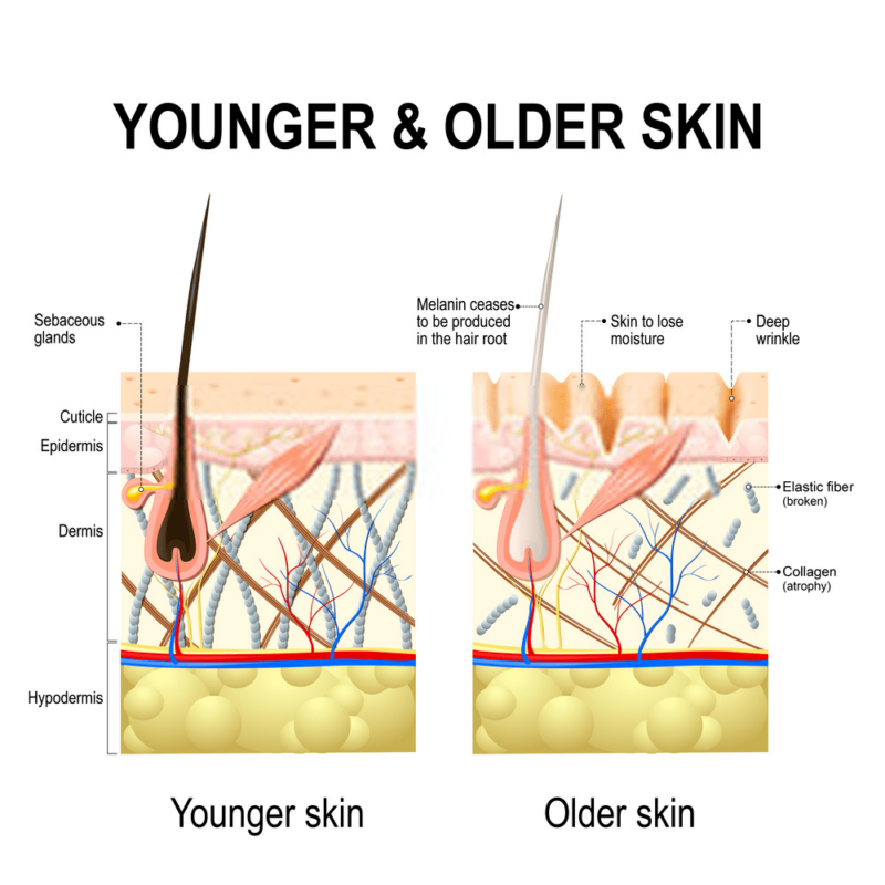 skin aging img refoem skincare